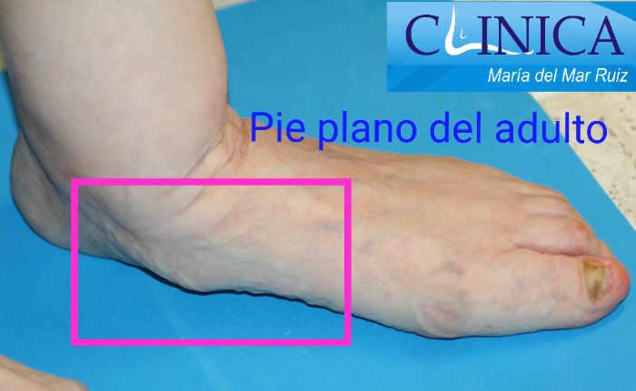 Pie plano adquirido del adulto en el que vemos el hundimiento del arco del pie