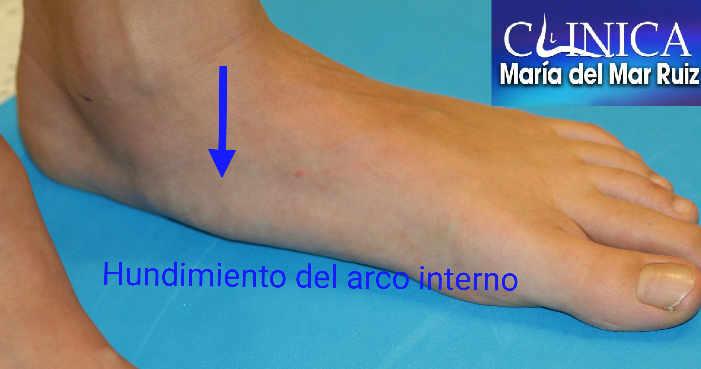 En el pie plano adquirido en adulto El pie progresivamente se hunde siguiéndole otras estructuras del pie y tobillo