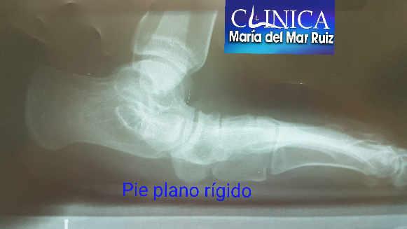 Las radiografías son las pruebas de imagen más utilzadas para estudiar el pie plano del adulto