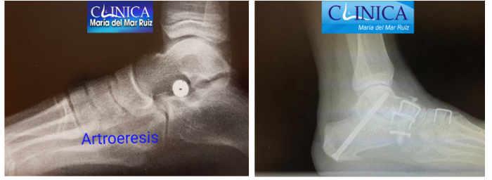 Las técnicas quirúrgicas van desde intervenciones sencillas a complejas dependiendo del estadio evolutivo del pie plano del adulto
