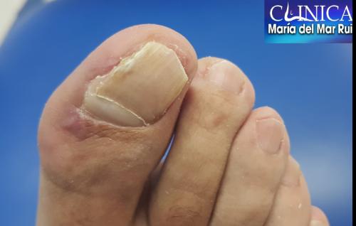 Este paciente varón de 42 años, acude a la consulta porque tiene mucho dolor en una uña, la del hallux o dedo gordo del pie izquierdo