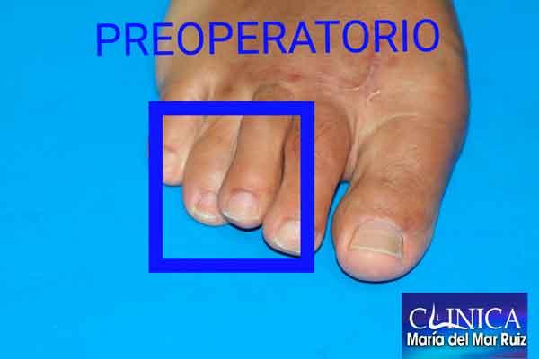 Me-duele-el-dedo-después-de-operarme