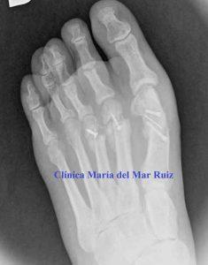Radiografía Me-duele-el-dedo-después-de-operarme