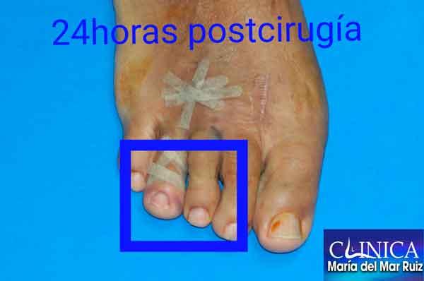 Imagen postquirúrgica Me-duele-el-dedo-después-de-operarme