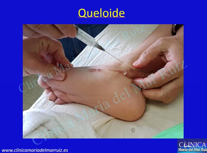 Queloides y Postcirugía de Queloide
