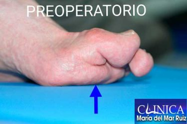 preoperatorio de un hallux-flexus-o-dedo-gordo-martillo