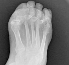 radiografia de paciente con un hallux-flexus-o-dedo-gordo-martillo