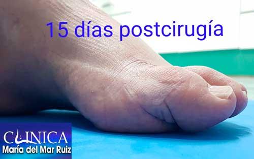 15 días tras la cirugía del hallux-flexus-o-dedo-gordo-martillo