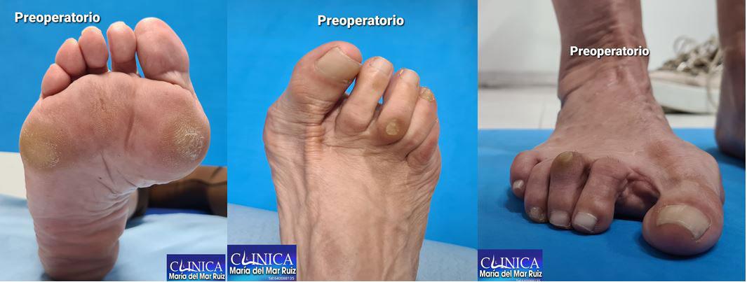experta en podología y cirugía del pie