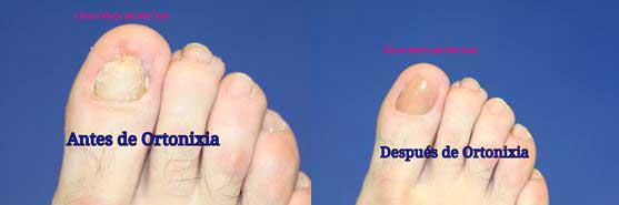 Muchas de las deformidades y problemas que aparecen en las uñas pasan desapercibidos porque no presentan síntomas